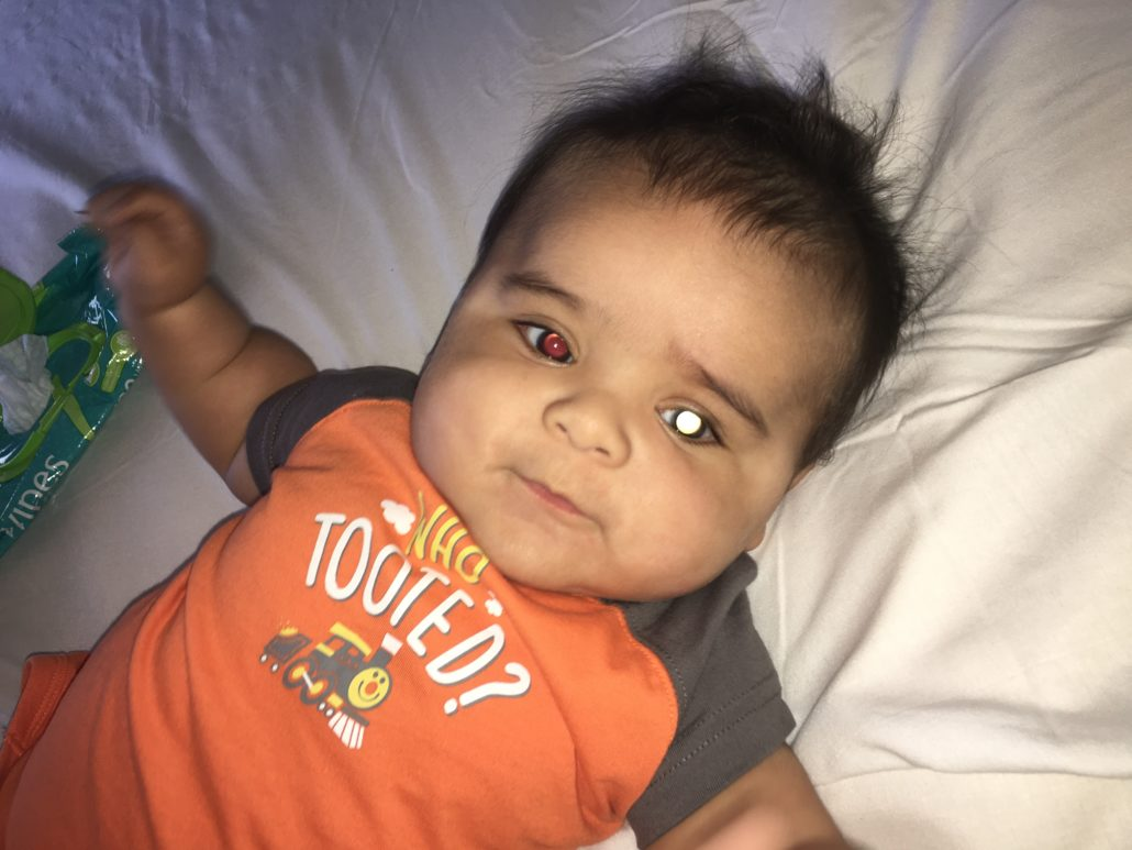 An infant child has a distinct white glow in his left pupil and a red reflex in his right eye.