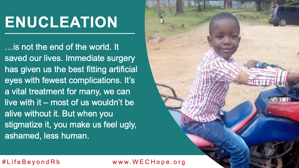 Enucleation is not the end of the world. It saved our lives. Immediate surgery has given us the best fitting artificial eyes with fewest complications. It's a vital treatment for many, we can live with it – most of us wouldn't be alive without it. But when you stigmatize it, you make us feel ugly, ashamed, less human. Image to the right of the text shows a young African boy astride a moped, a shy smile on his face.
