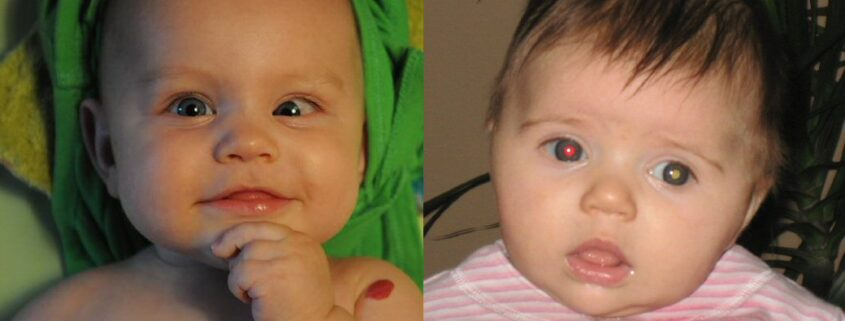 Two photo panels side by side. On the left, a baby boy is seen with the left eye turning in towards his nose. On the right, a baby girl has a red reflex in her right eye, while her left eye shows a dull creamy-white reflex.