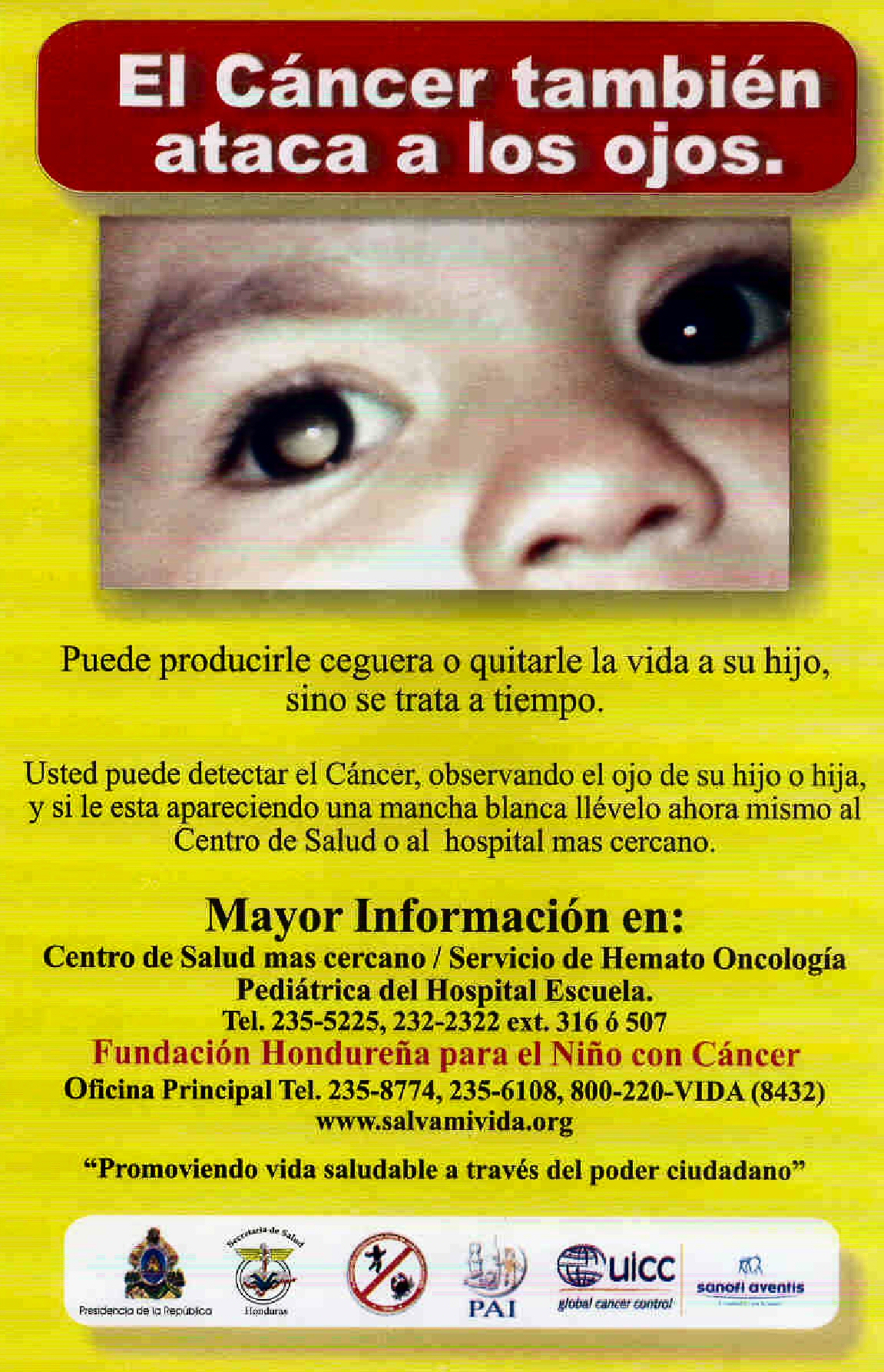 A retinoblastoma awareness poster used during the Honduras campaign. The poster is bright yellow, with white title text highlighted on a bold red banner background. Detailed text in Spanish sits below a headline photo showing a rectangular section around a child's eyes, highlighting the white glow in one eye.