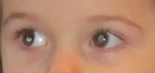 A close-up photo of white reflection in both eyes. One appears brighter but only covers part of the eye. The other appears more dull but fills the whole pupil.