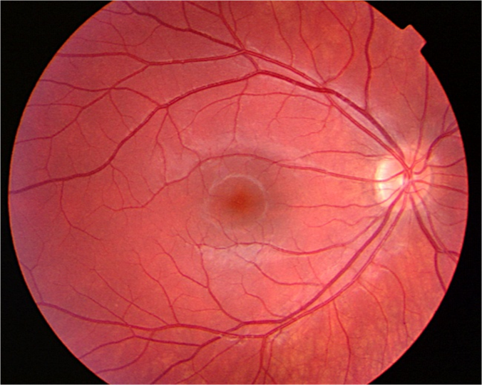 A normal retinal photograph, showing reflection of light from the optic disc